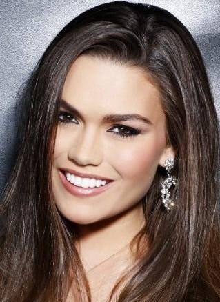 Megan smile makeover after porcelain veneers